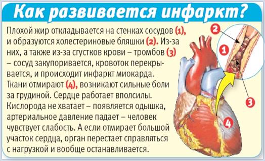 Реабилитация после инфаркта: жизнь, питание, диета